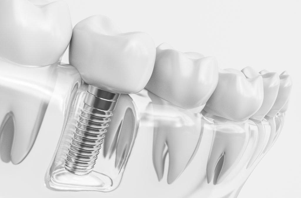 ¿Por qué debería colocarme implantes dentales?